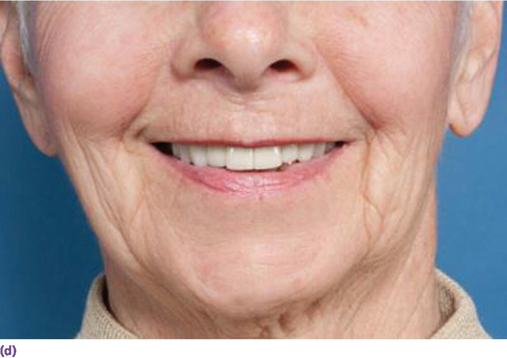 Photo displaying man smiling indicating his anterior view of denture denoting final esthetic result with fixed dental prosthesis.