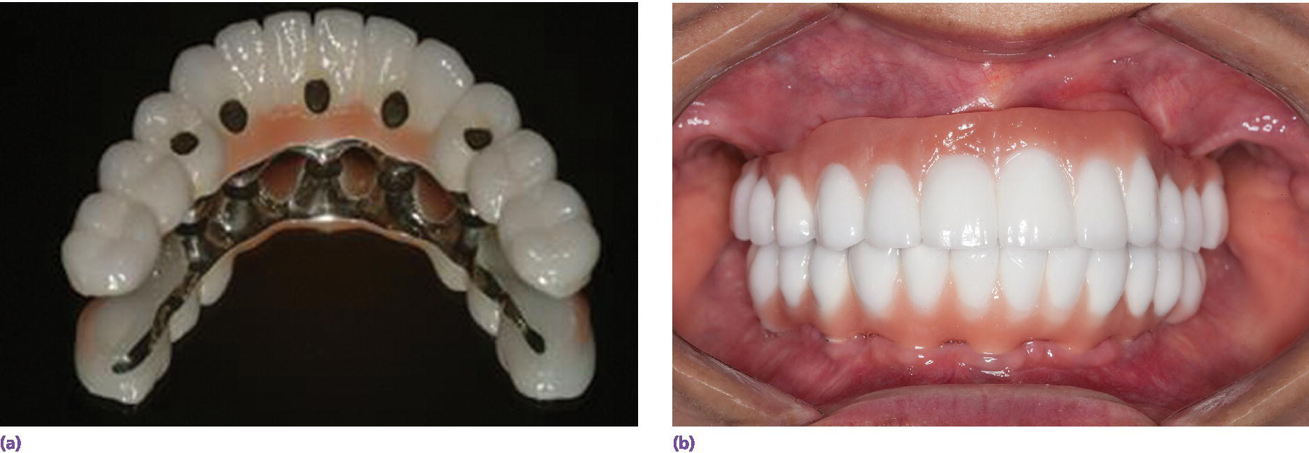 Photos of prosthesis construction with direct-to-fixture connection to secure cantilever design as sole osseous anchorage in interforaminal mandible opposing a maxillary fixed dental prosthesis(left,right).