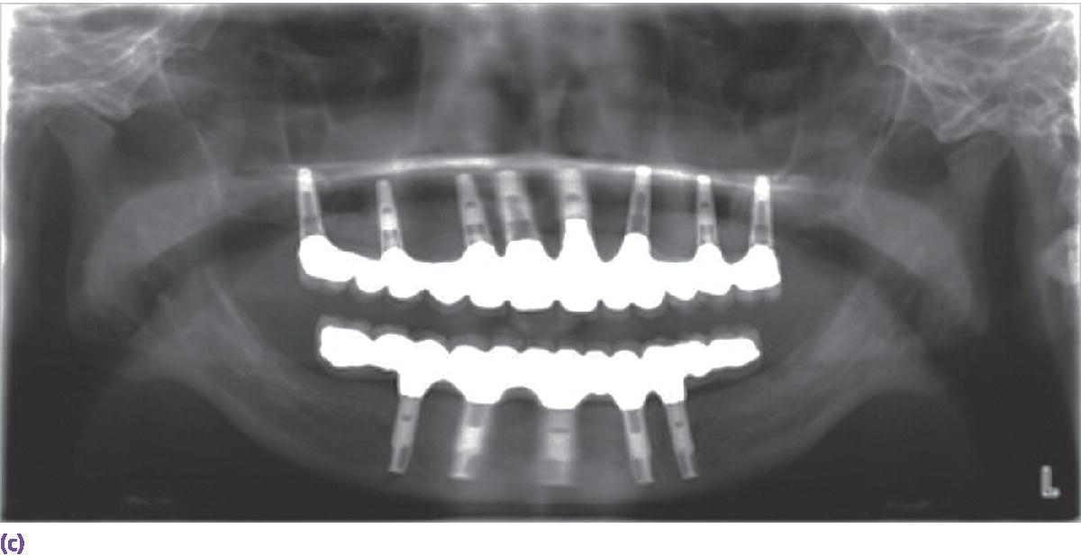 Radiograph displaying palladium–copper framework used to obtain maximal resistance to stress on cantilevered area.