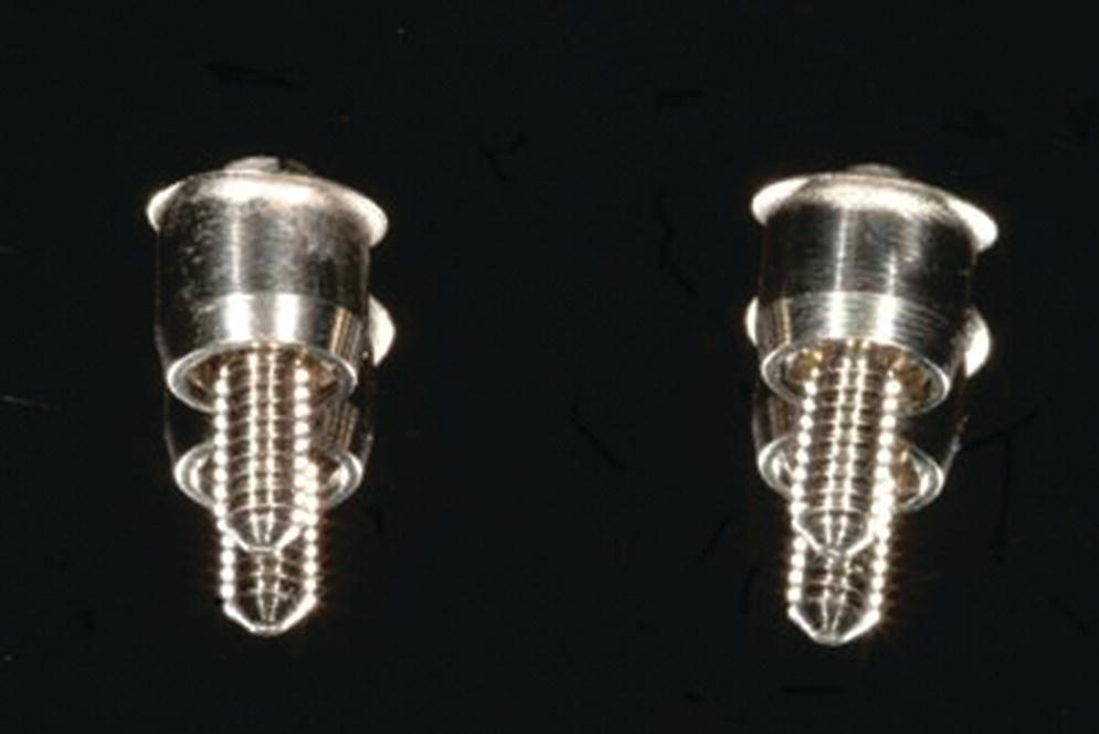 Photo of standard abutments removed after 10 years of functioning beneath a fixed dental prosthesis with cantilevered design displaying two abutments.