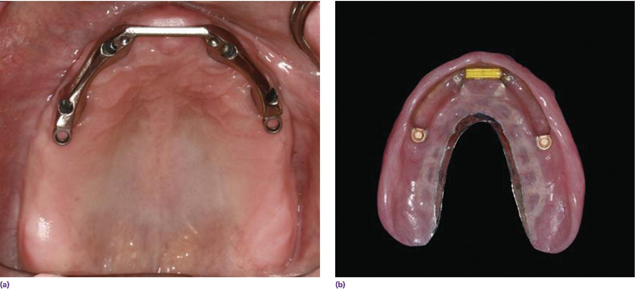 Photos displaying Hader bar attachment in support and retention for (left) metal‐based overdenture design(right).