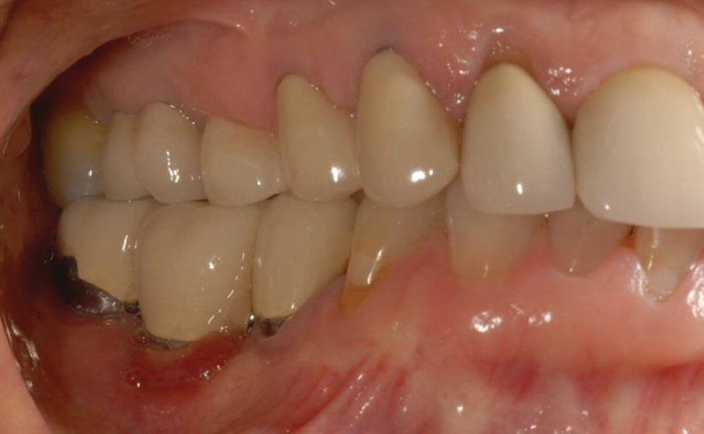 Photo of gum and teeth depicting peri‐implant mucositis in lower right molar.