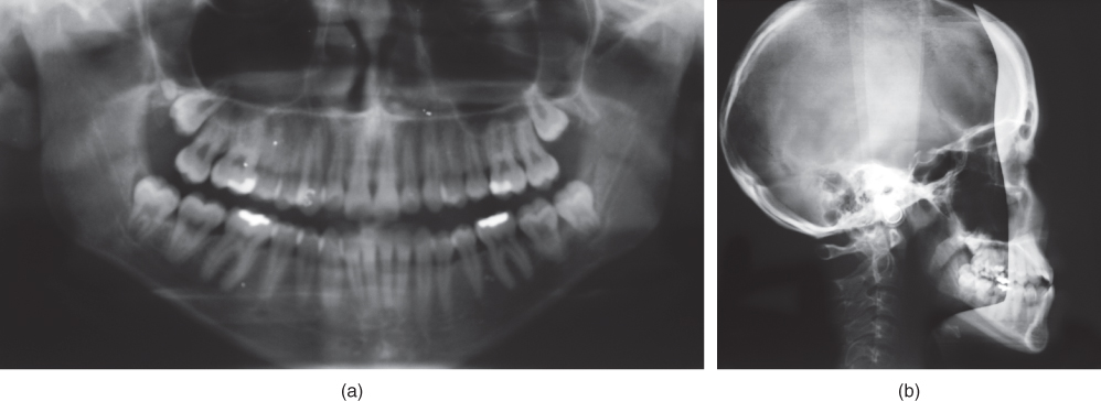 Photo showing Mandibular movement capacity: reduced laterotrusive capacity to the left.