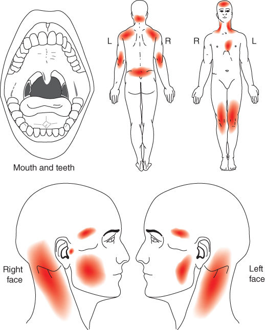 Photo showing Orofacial pain locations confined to masseter muscles.