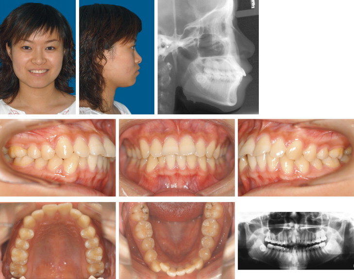Tooth movement after orthodontic treatment with 4 second