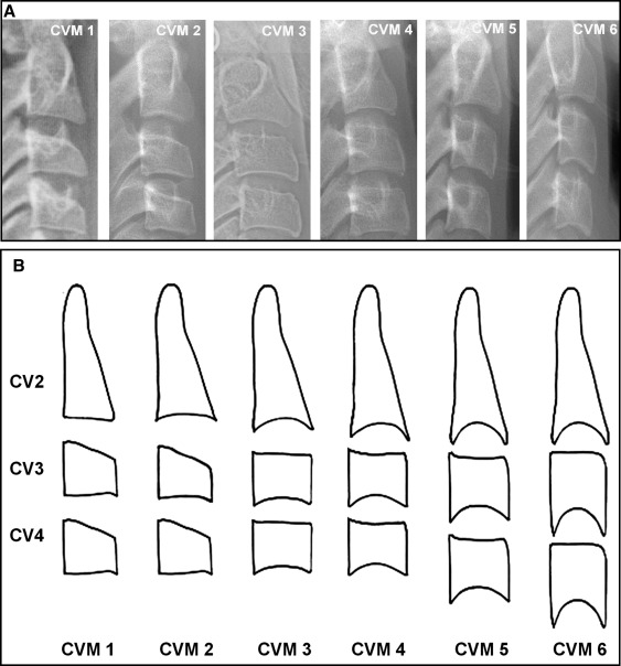 Racial And Sex Differences In Timing Of The Cervical