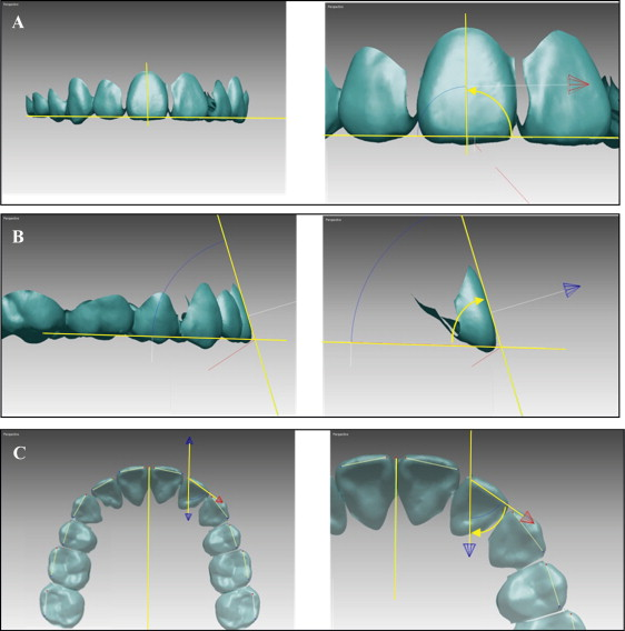 Comparison Of Virtual And Manual Tooth Setups With Digital