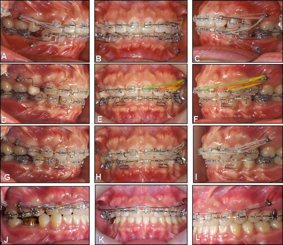 Atypical Orthodontic Extraction Pattern Managed By