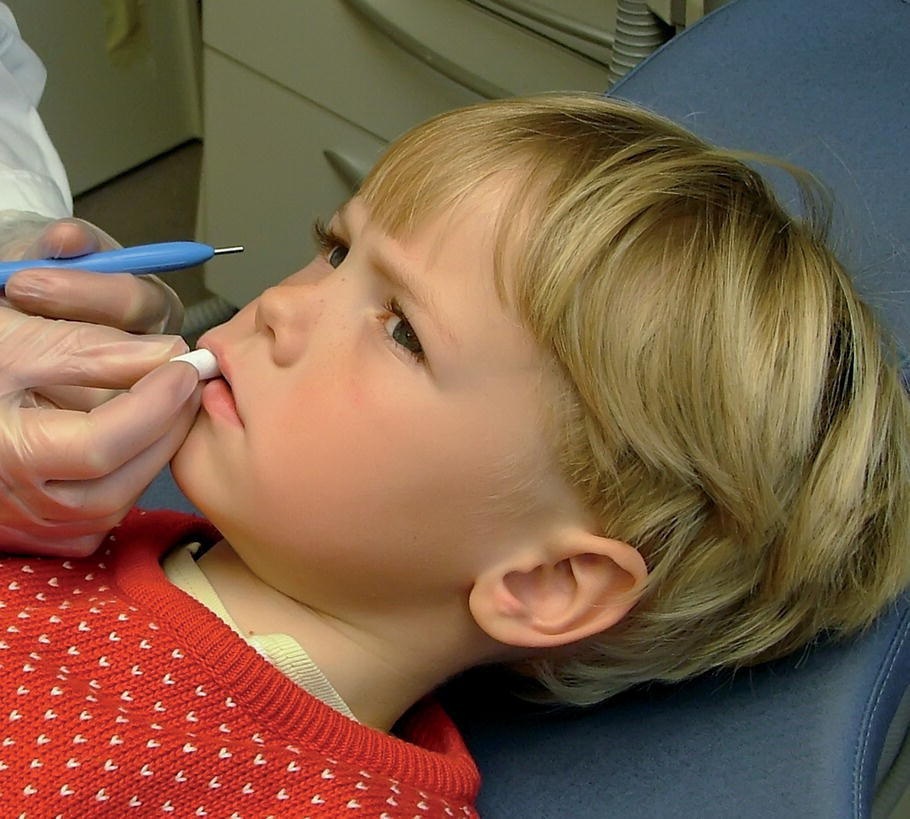 Photo displaying a gloved hand placing fissure sealants on a boy's first permanent molars.