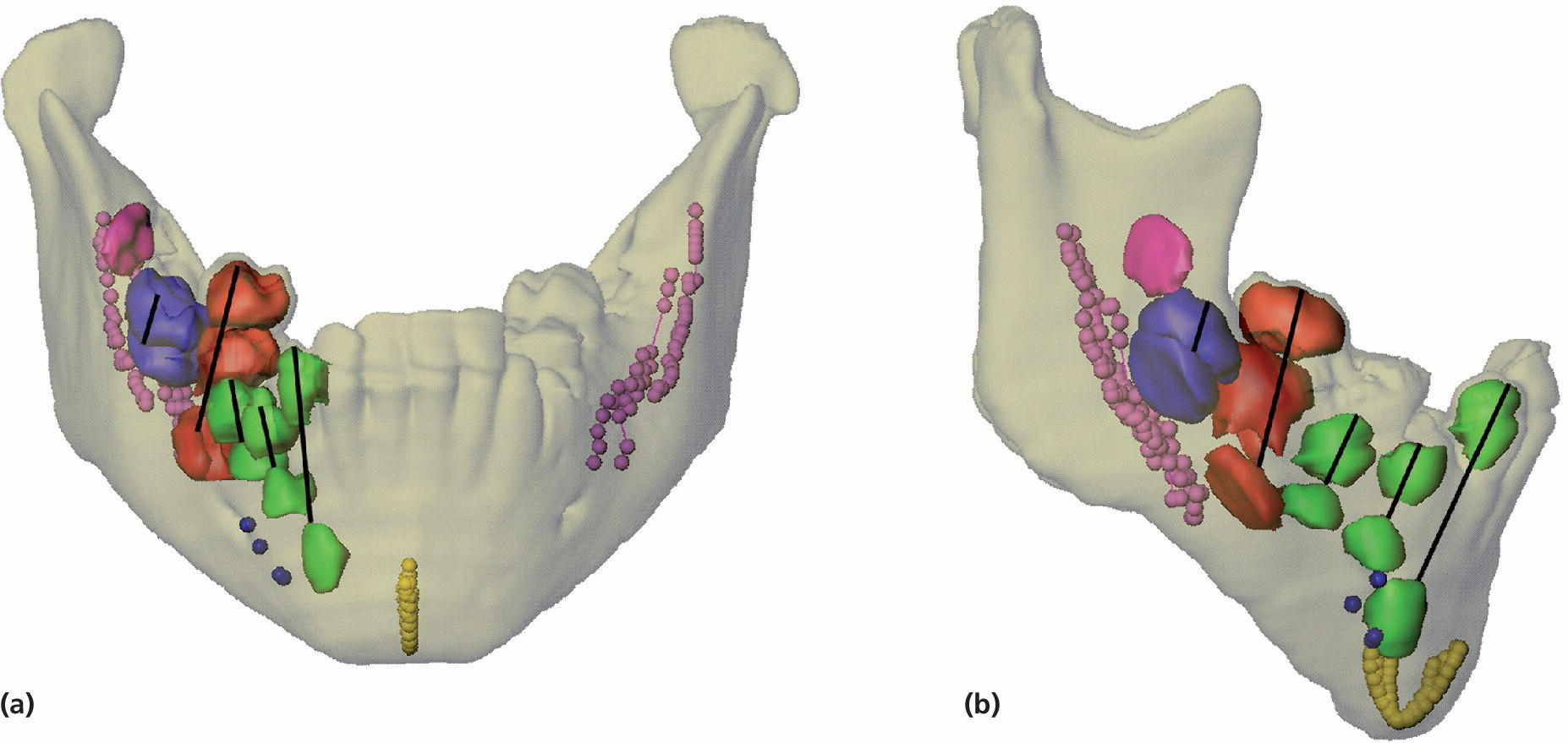 Frontal (a) and lateral views (b) of the transparent mandible, displaying symphysis menti, mental foramen, mandibular canals, and teeth in discrete colors, with lines indicating the eruption paths.