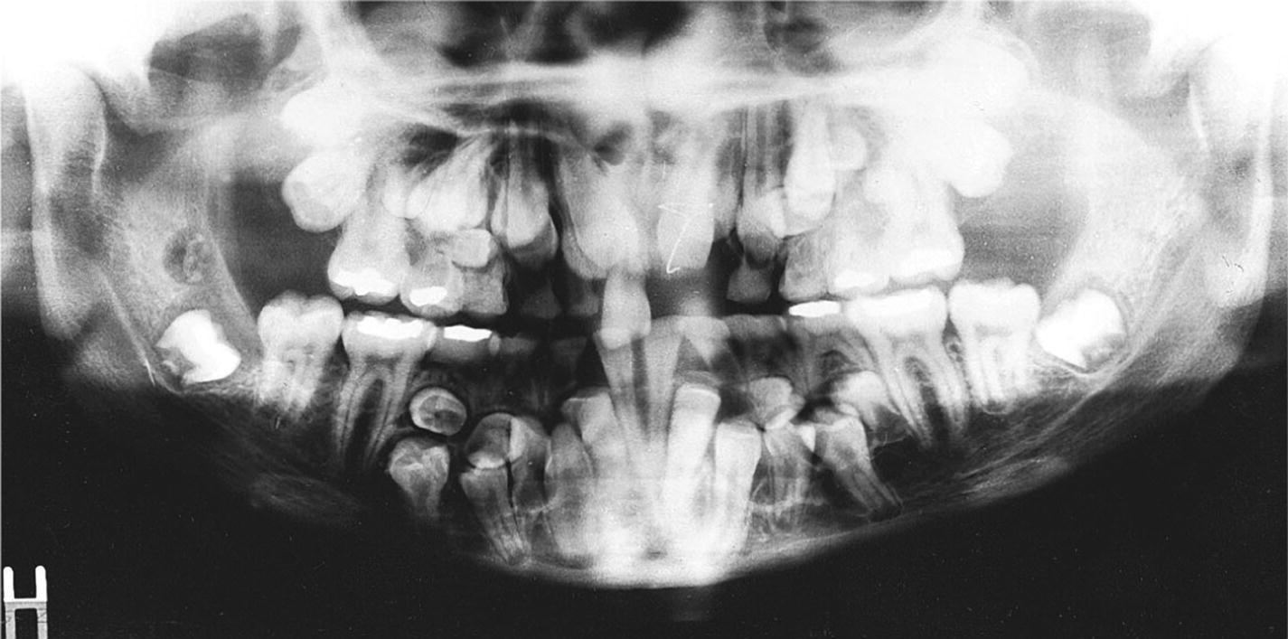 Orthopantomogram displaying supernumerary permanent teeth and arrested eruption of many of the normal permanent teeth of a boy with cleidocranial dysplasia.