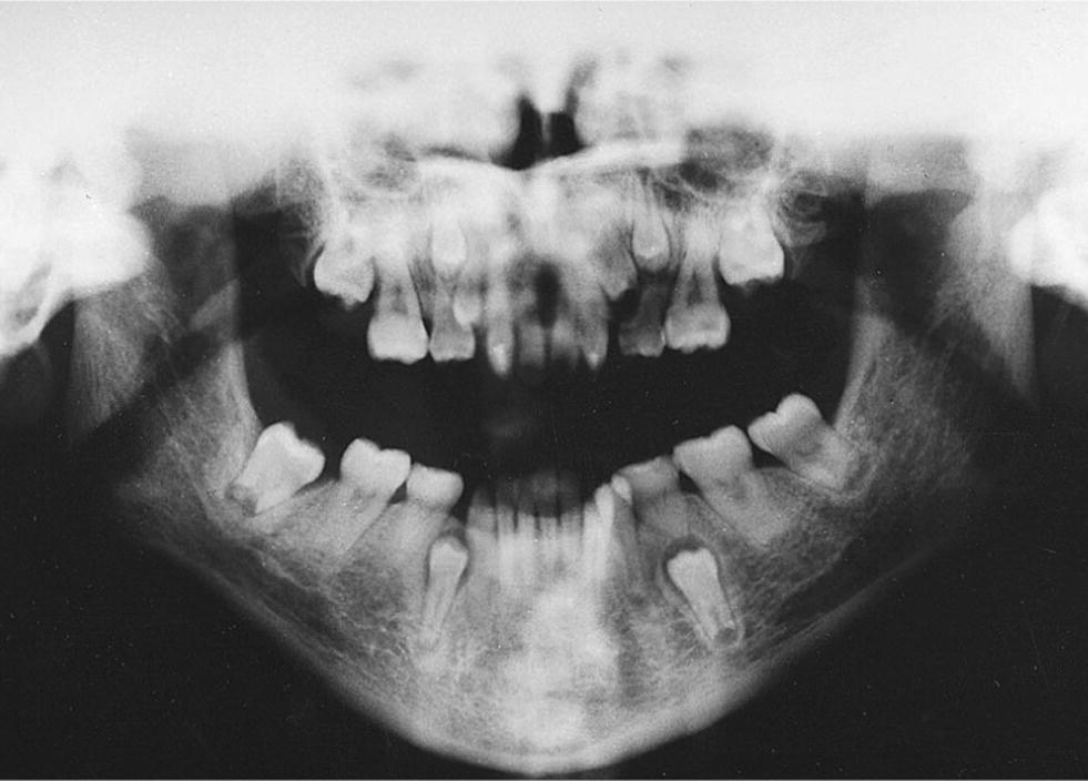 Orthopantomogram displaying severely delayed eruption of several permanent teeth and dense jaw bones of a girl with tricho‐dento‐osseous syndrome.