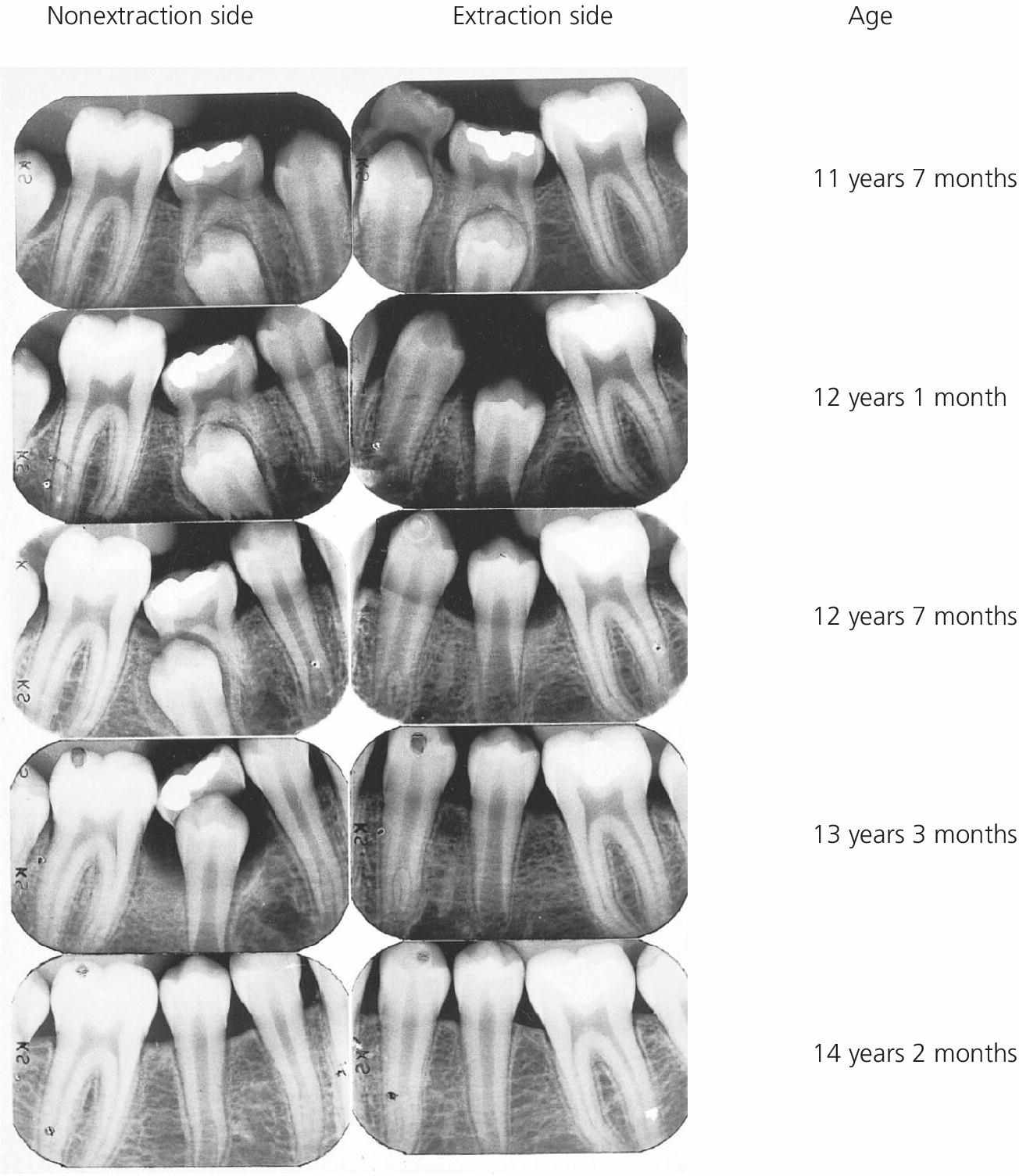 Radiographs of infraoclusion of primary molars of a boy from 11 years 7 months to 14 years 2 months of age displaying nonextraction (left) and extraction sides (right).