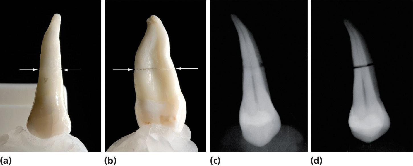 Left: 2 Photos of a tooth with root fracture, displaying the tooth in facial and approximal aspects. Arrows depict direction. Right: 2 Radiographs of the tooth displaying fracture as a circle and as a distinct line.