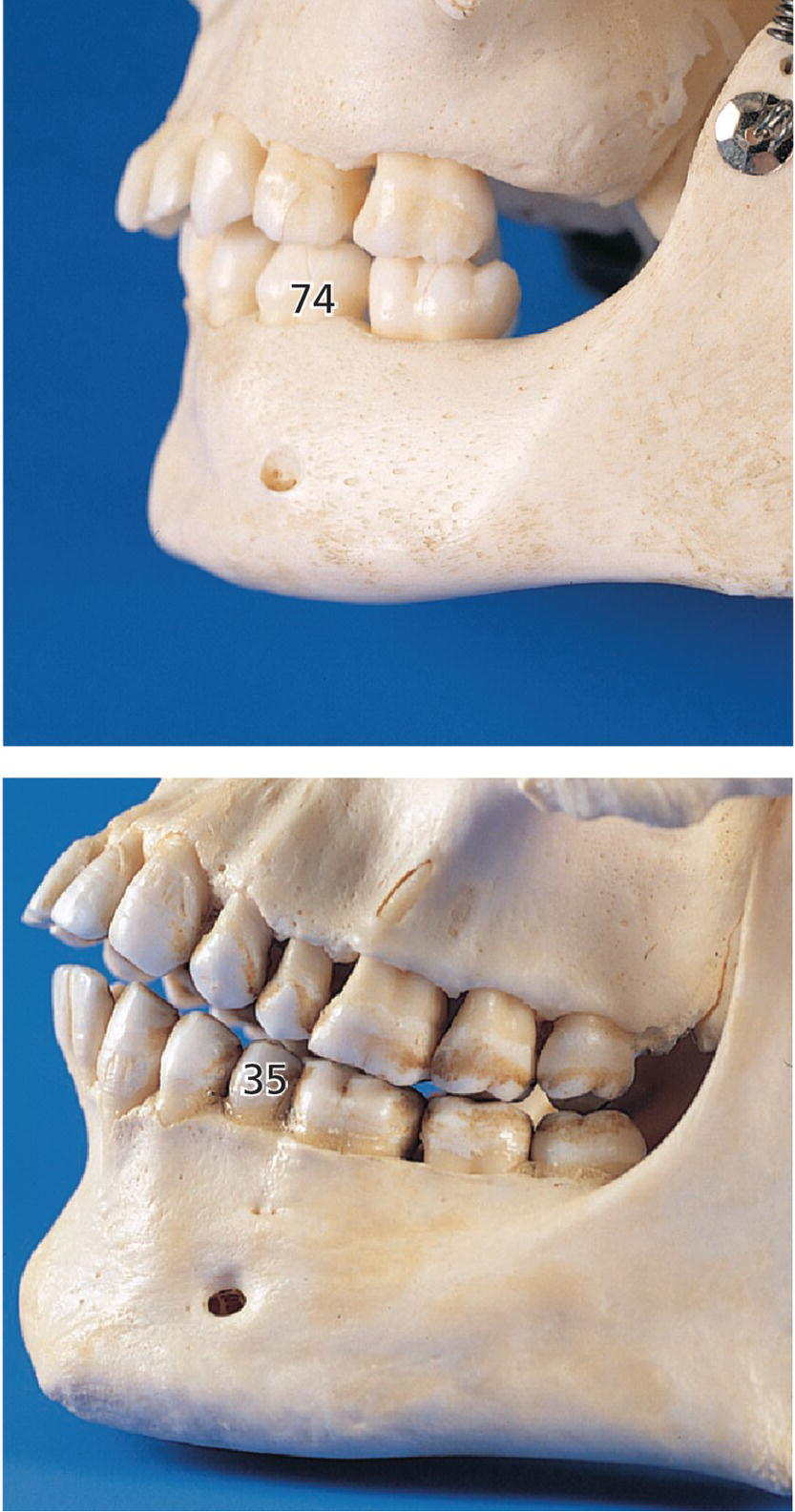 Two photos of skulls displaying mental foramen located closer to the primary mandibular first molar (top) and the permanent second premolar (bottom).