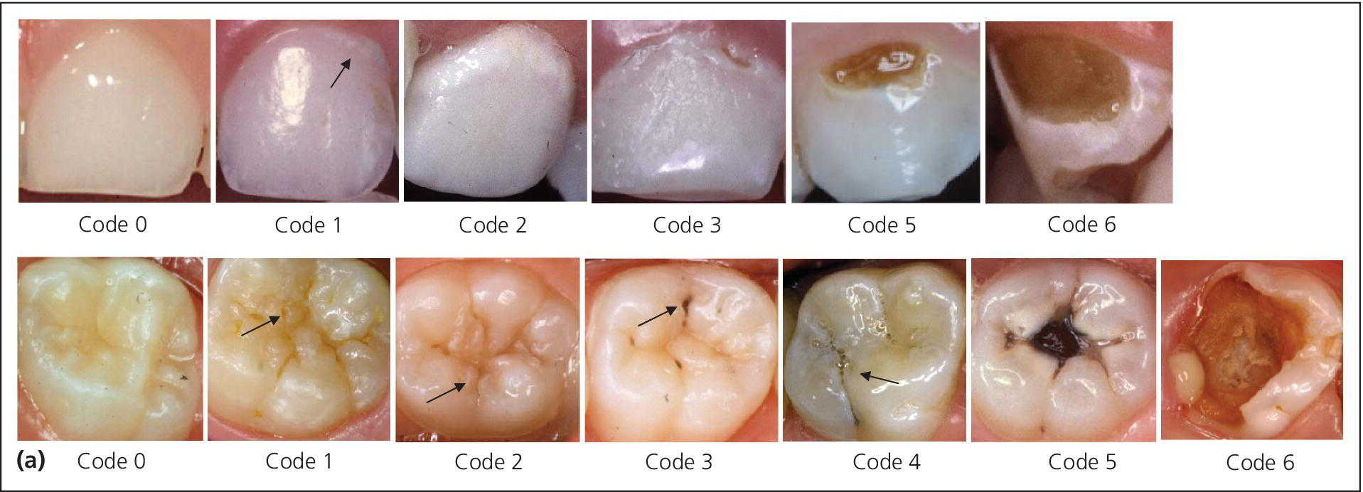 Two sets of photos of the teeth, depicting the ICDAS-based criteria for severity grading of caries on free smooth and occlusal tooth surfaces.