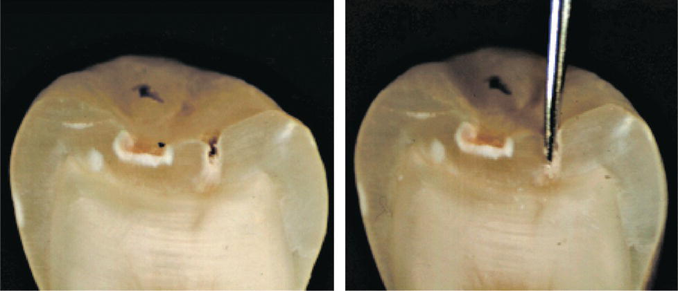 Two photos of a sectioned premolar with an enamel caries lesion in the fissure before probing (left) and during intense probing (right).