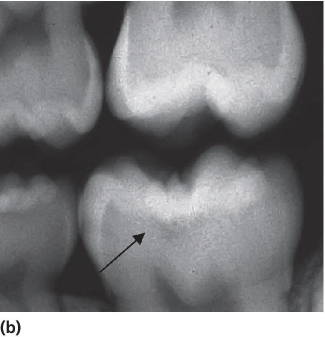 Radiograph displaying radiolucency in the dentin, indicated by an arrow.