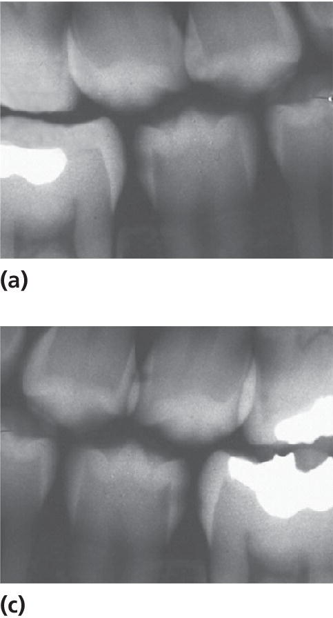 Radiographs of the two mandibular second premolars, displaying radiolucency in the outer dentin.
