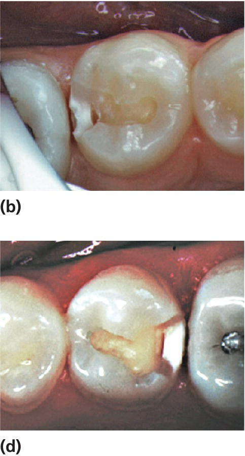Photos displaying caries lesions on distal surfaces of two mandibular second premolar.