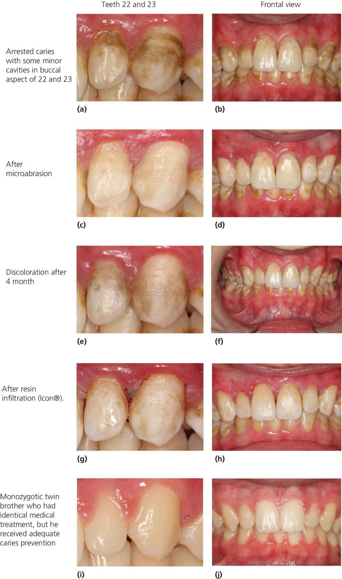 Photos of teeth 22 and 23 (left) and fontal views (right), (a,b) with caries and cavities, (c,d) after microabrasion, (e,f) discoloration after 4 month, (g,h) after resin infiltration, (i,j) and of the twin brother.