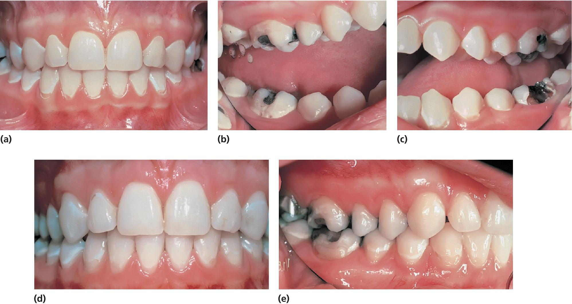 Photos displaying teeth of a 13-year-old girl, with active caries (a–c), same teeth with adequate caries control, 5 years later (d), and same teeth still with adequate caries control, another 3 years later (e).