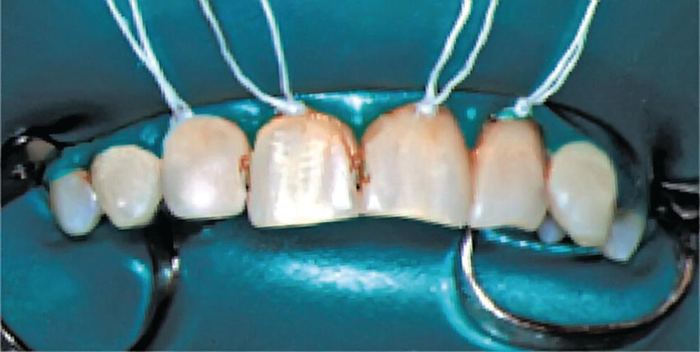 Photo displaying rubber dam used for isolating and drying the operation field before restorative therapy of maxillary incisors.