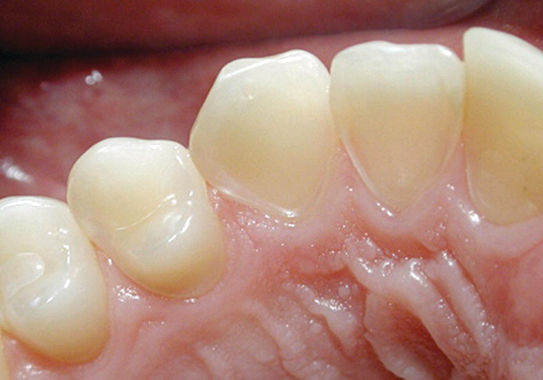 Photo displaying severe erosion on the palatal surface of the upper incisors with the enamel close to the gingival margin being intact.