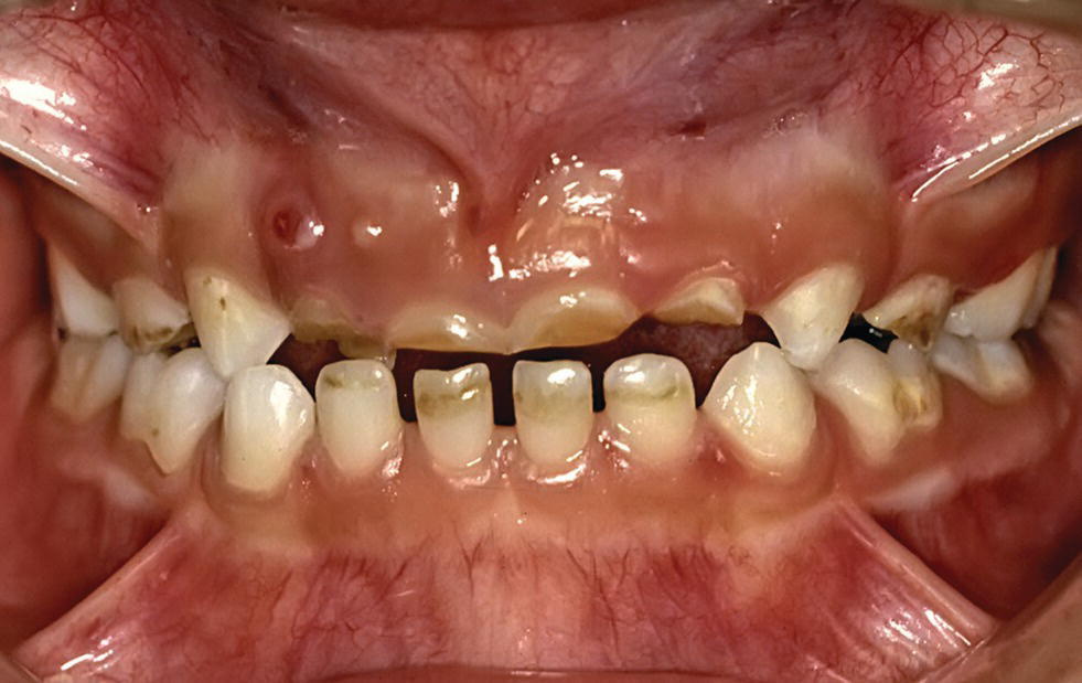 Photo of dental erosion in a 6-year-old child as a result of lemon sucking. Severe endodontic problem especially in regio 52 and 51 is displayed.