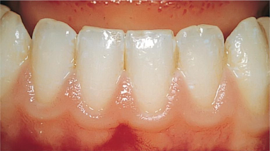 Photo of mandibular teeth with clinically healthy permanent tooth gingiva.