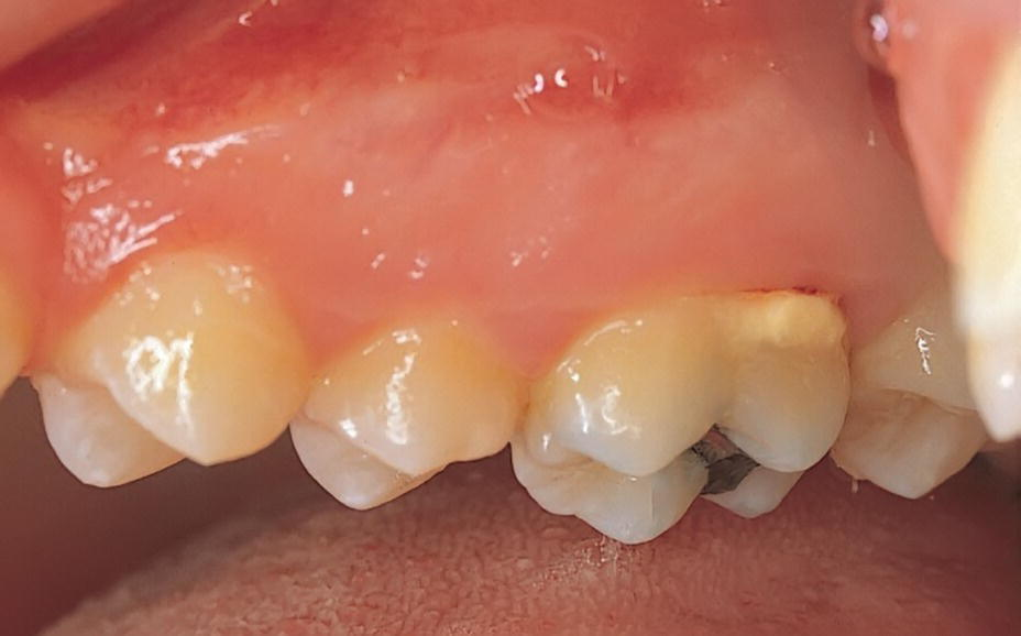 Photo of maxillary teeth with supragingival calculus.