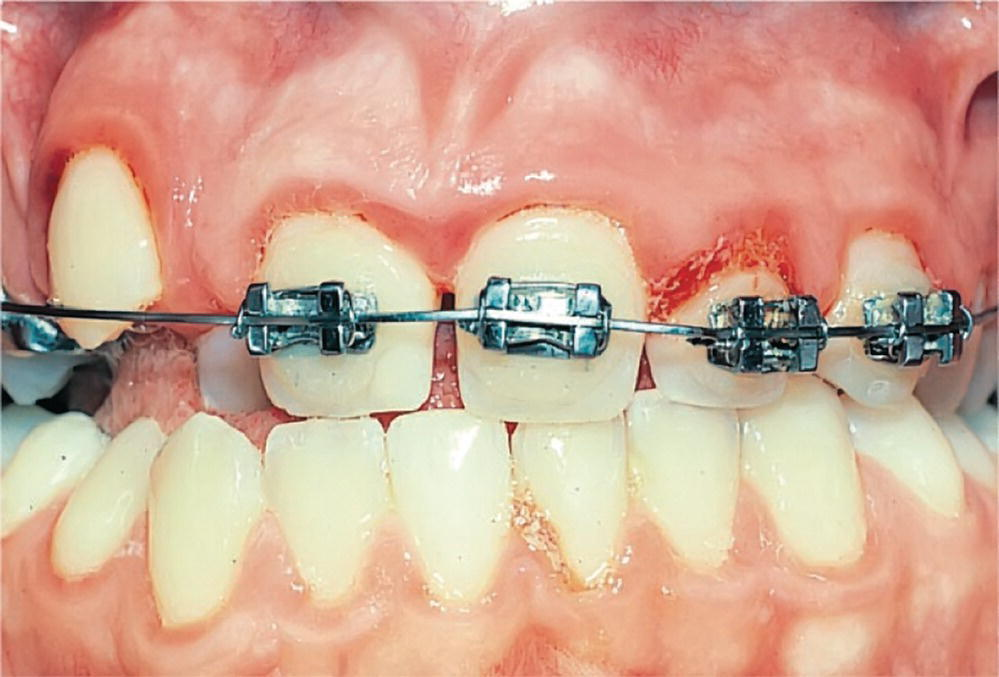 Photo displaying poor oral hygiene and gingivitis in a patient undergoing orthodontic treatment.