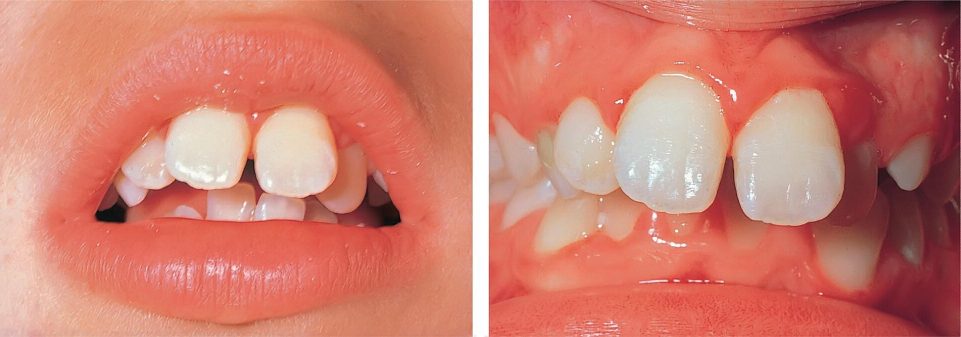 2 Photos of a patient's mouth (left) and bite (right) displaying chronic gingivitis associated with mouth breathing.