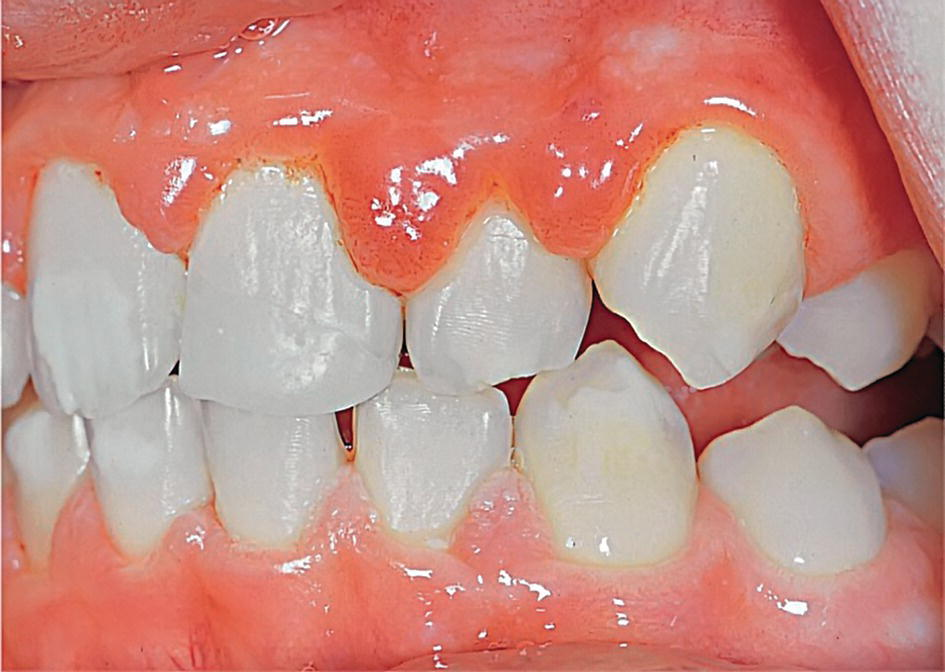 Photo displaying a patient's bite displaying edematous gingival inflammatory reaction during puberty.