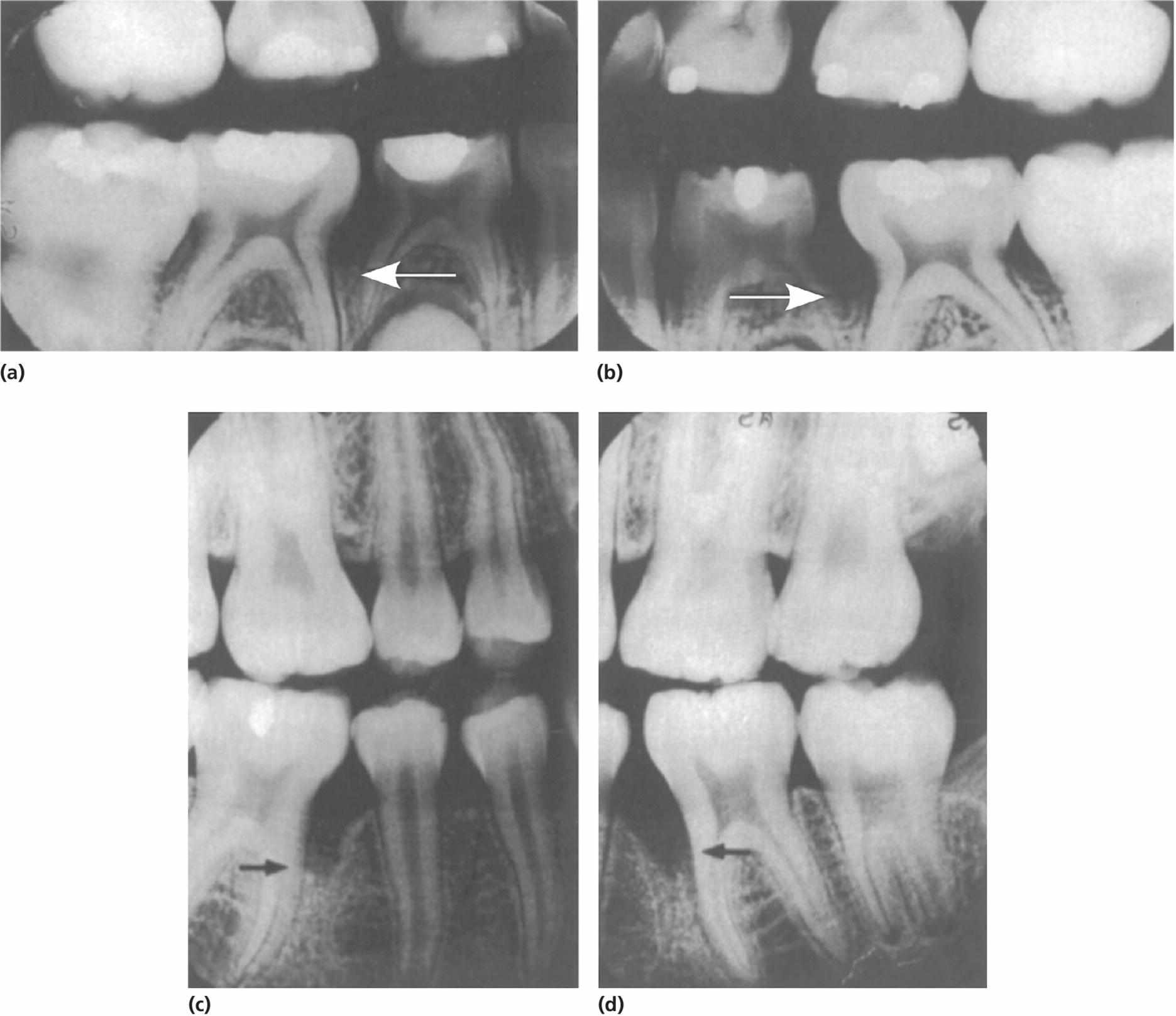 Dental radiographs of a 14-year-old boy presenting loss of bone support with arrows pointing the location (a, b) that developed into localized aggressive periodontitis (c,d).