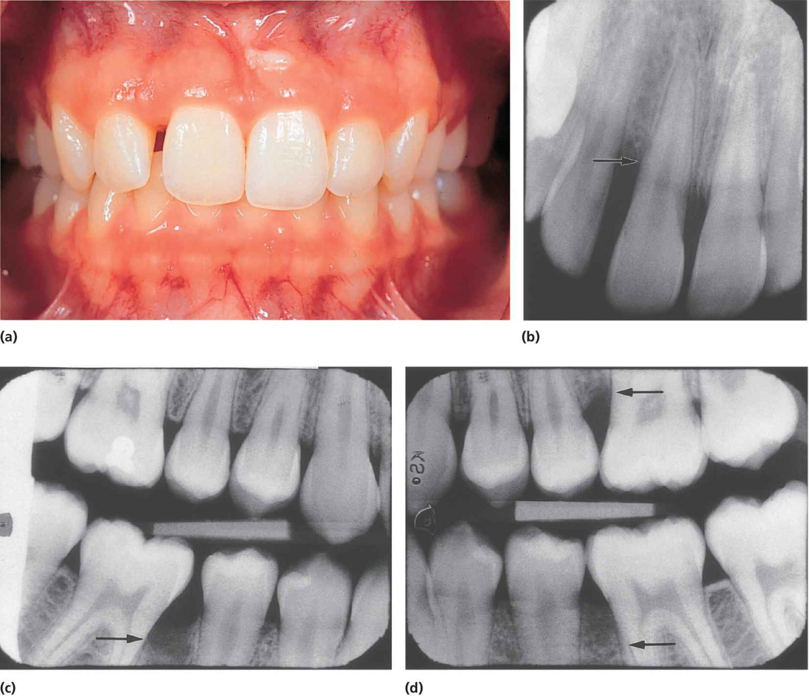 Photo of a patient's bite displaying localized aggressive periodontitis (a). Radiograph of incisors (b) and two bitewing radiographs (c,d) present bone destruction as located by arrows.