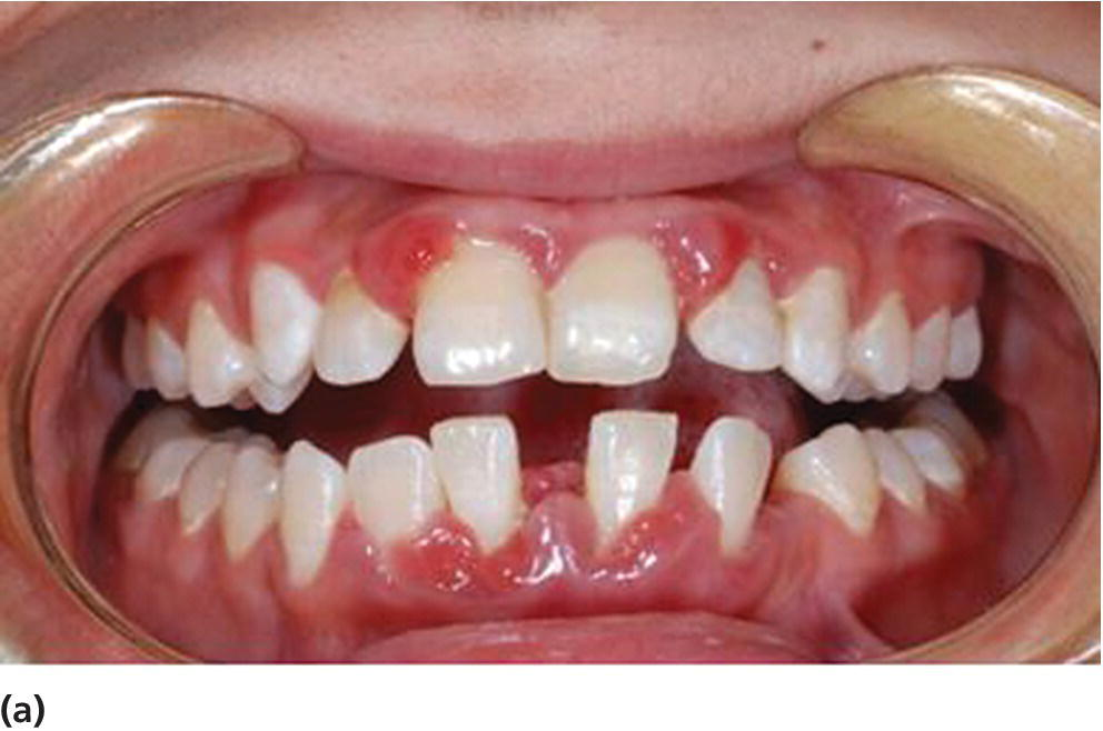 Photo of the teeth of a 19-year-old patient with diabetes mellitus and poor metabolic control, displaying aggressive periodontitis.