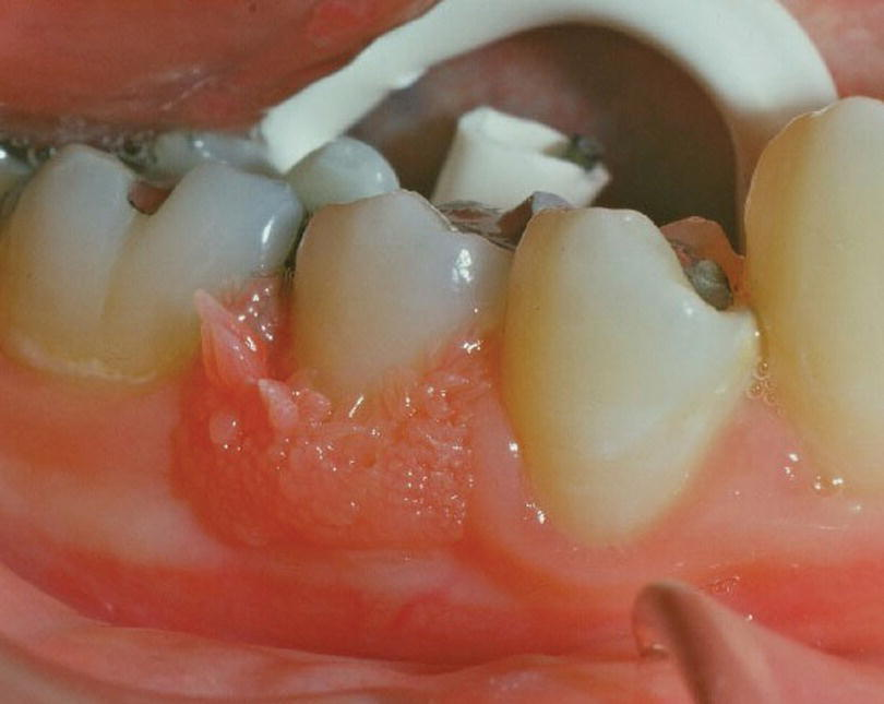 Photo displaying a wart on the gums.