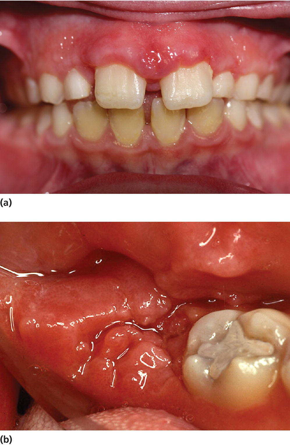 Photo of Crohn's disease displaying gingival characteristics on the incisal region (top) and molar region (bottom).