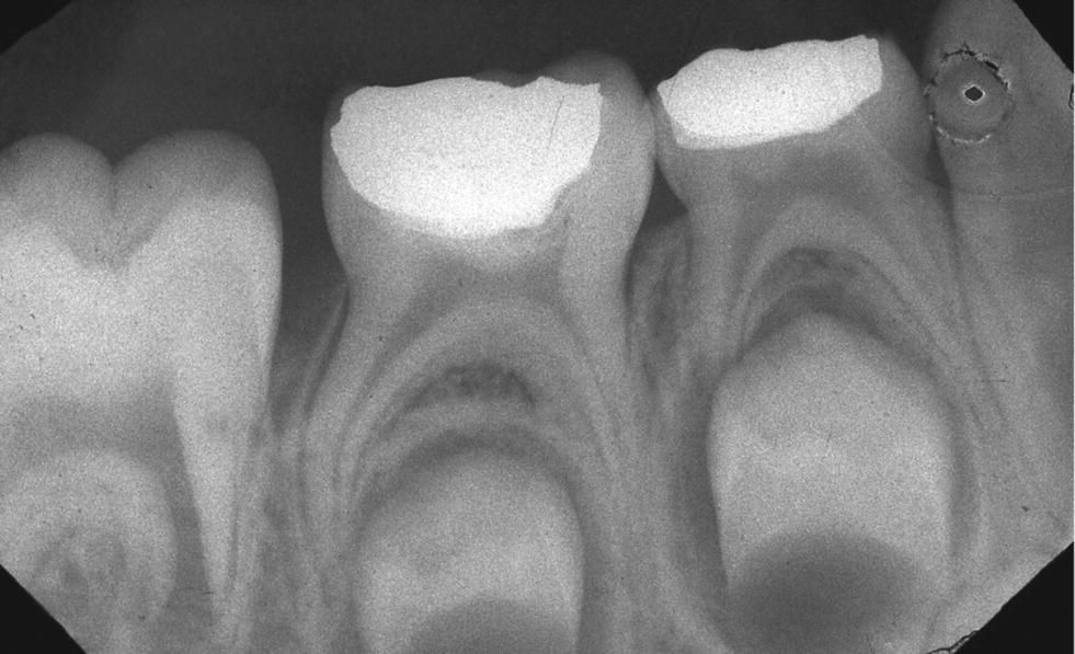 Radiograph of primary second molar after partial pulpotomy.