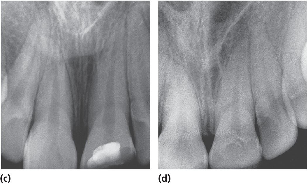 2 Radiographs partial pulpotomy of a permanent incisor with complicated crown fracture at the time of treatment (c) and several years later (d).