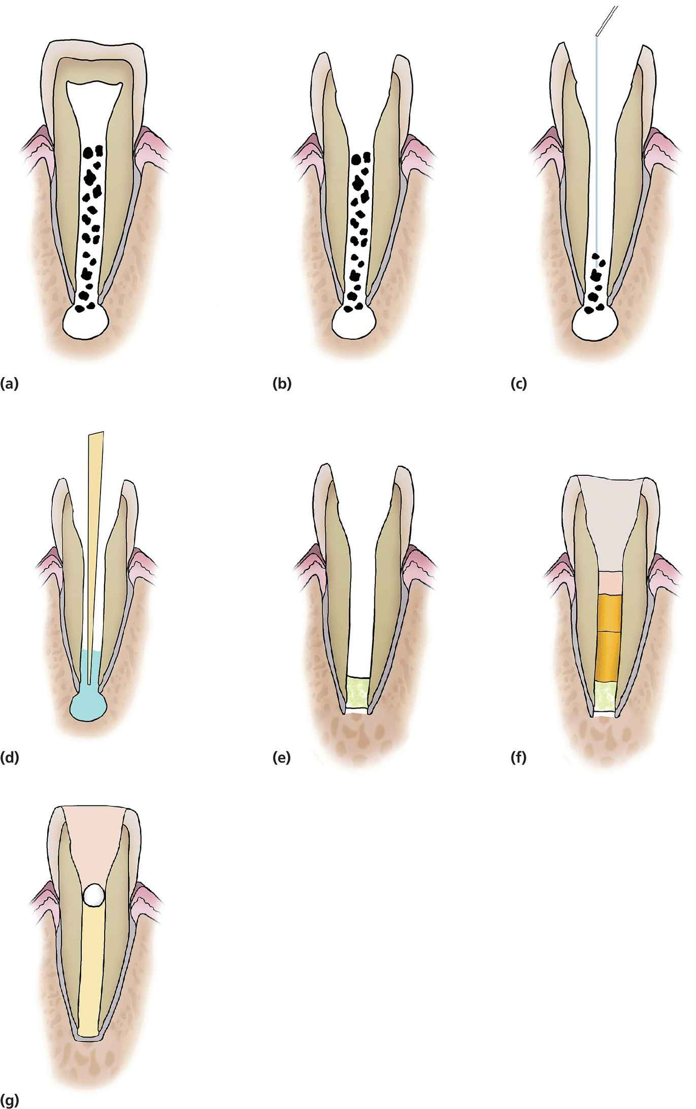 Diagrammatic representation of MTA plug and thermal guttapercha obturation of immature teeth.