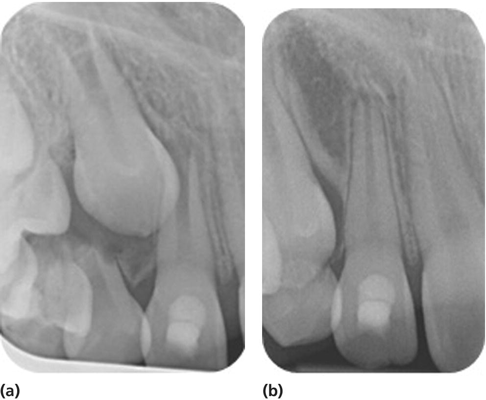 Radiographs displaying the continuation of root development in a patient treated with RET using blood clot as a scaffold on October 23, 2013 (left) and October 23, 2014 (right).