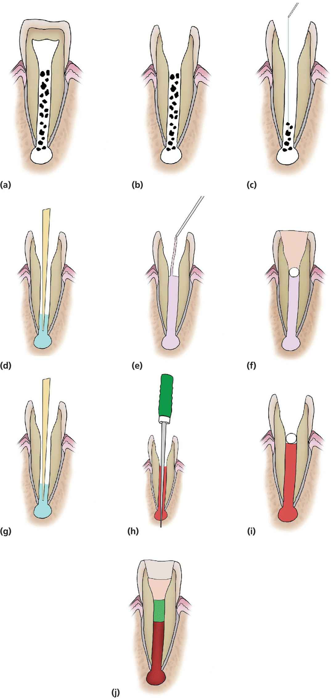 Diagrammatic representations of the stages of RET of immature teeth.