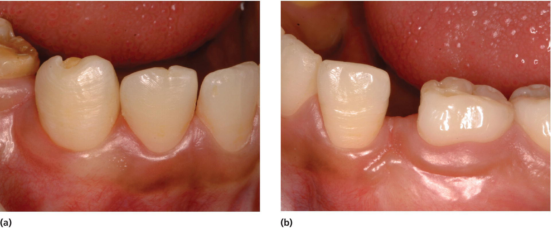 2 Photos displaying hypoplasia with exposure of dentin of the right lower permanent canine (left) and absence of the left lower permanent canine due to removal of the tooth germ (right).