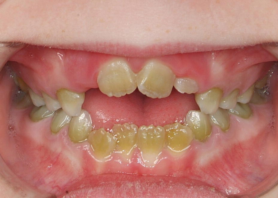 Photo of teeth of a 7-year-old child with pigmentation in both primary and permanent teeth.