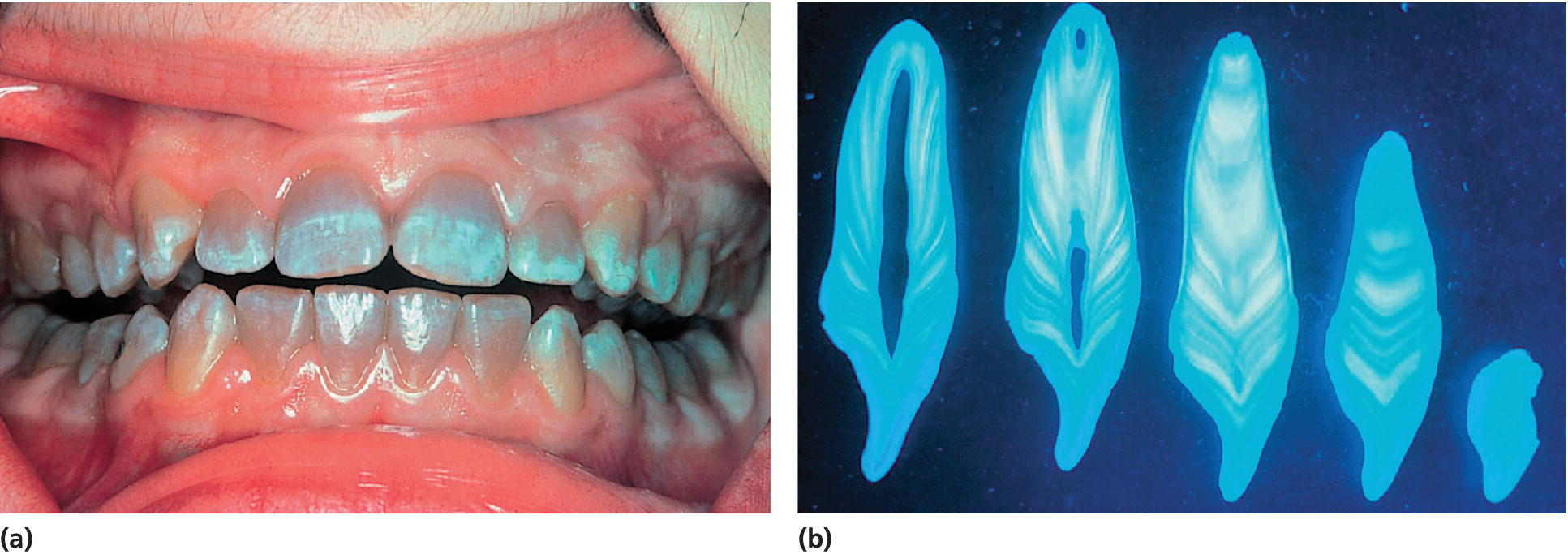2 Photos of teeth of a 14-year-old girl exhibiting tetracycline stains (left) and a screen capture of histologic sections of tooth illustrating bands of tetracycline staining (right).