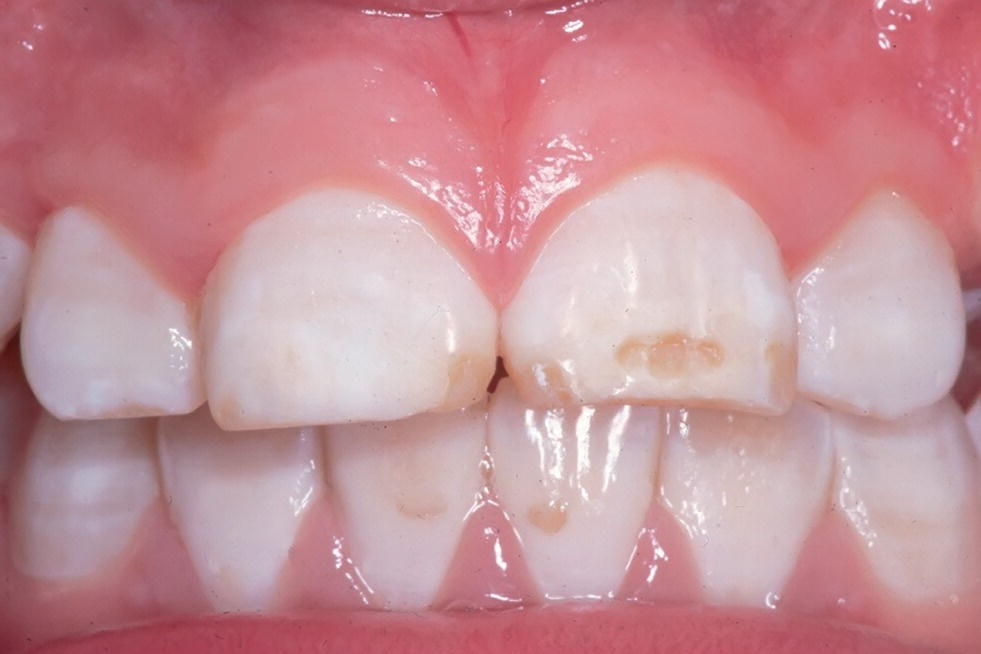 Photo of teeth and gums of a 12-year-old boy depicting dental fluorosis with posteruptive breakdown of the enamel and tooth wear.