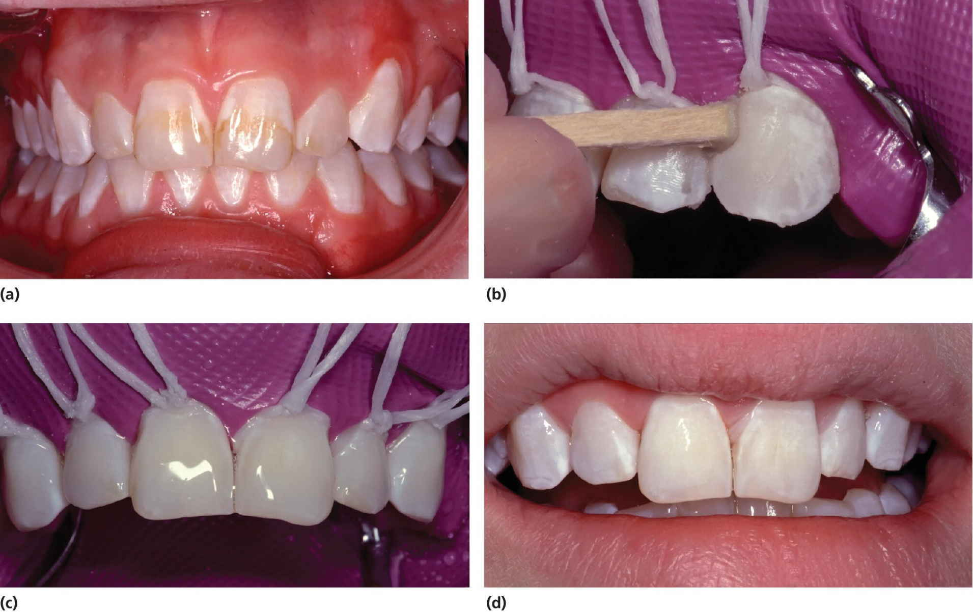 4 Photos of teeth of a 14-year-old girl, displaying mild dental fluorosis, the surface rubbed using a wooden pin and covered by sodium fluoride gel, and the treatment result.