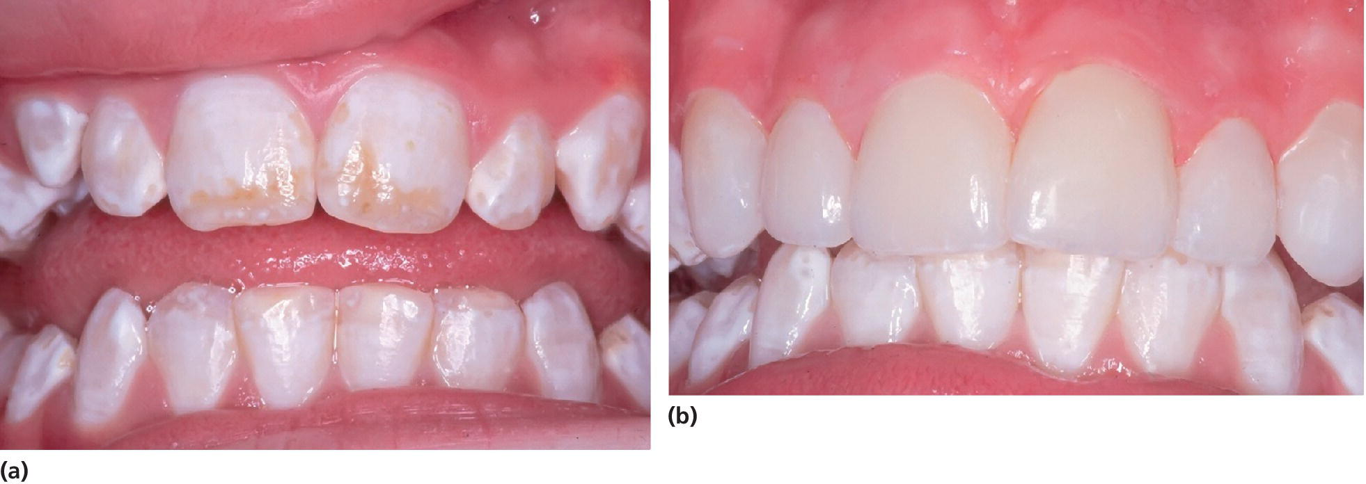 Photos of teeth and gums of 13-year-old girl, displaying moderate dental fluorosis (left) and porcelain veneers attached to the upper left canine to the upper right (right).